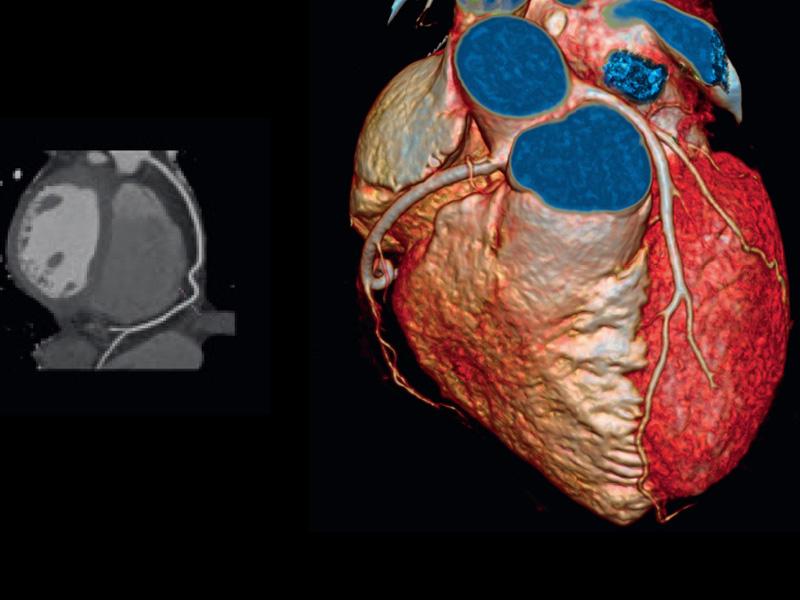 Minimaster Cardioimaging Integrato
