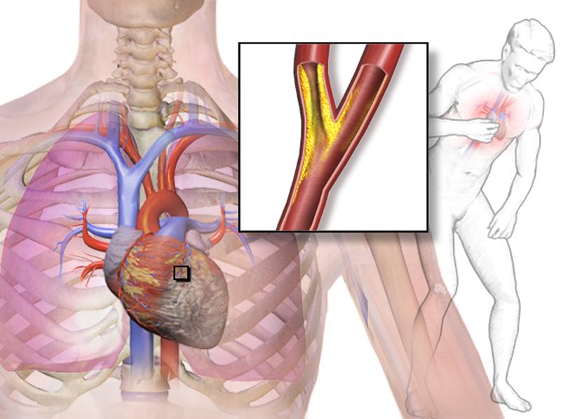 Cardiopatia ischemica cronica: sappiamo proprio tutto?