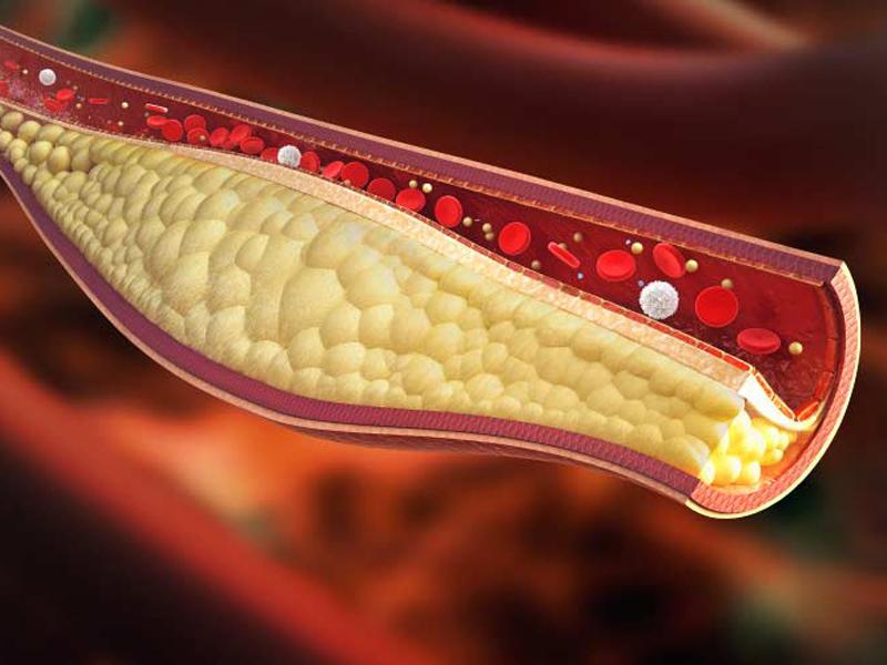 Ipercolesterolemia: sappiamo proprio tutto?