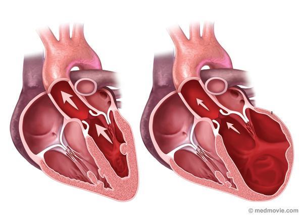 Focus – Lo scompenso cardiaco del futuro