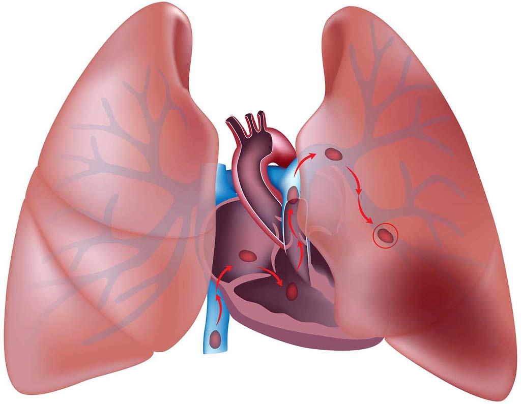 Minimaster Uso dei nuovi anticoagulanti orali nella terapia e nella prevenzione della trombo-embolia polmonare. Position Paper ANMCO