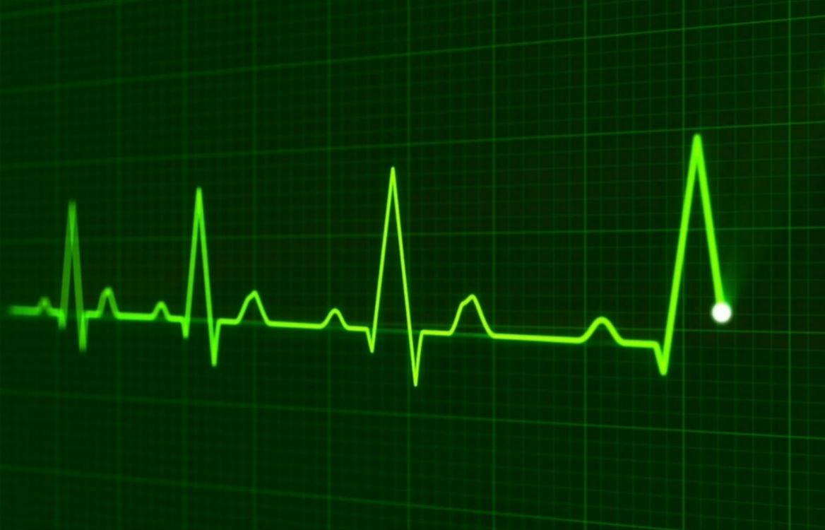Ablazione transcatetere o il trattamento farmacologico nel paziente con fibrillazione atriale e HFrEF?