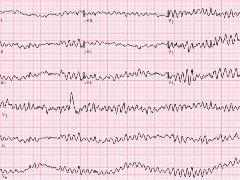 Importanti novità in aritmologia per il cardiologo clinico