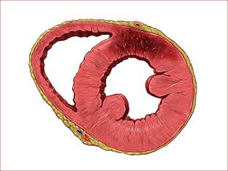 Appropriatezza dei percorsi nella gestione clinica della cardiopatia ischemica cronica: il Forum ANMCO 2015