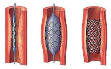 Il futuro della rivascolarizzazione miocardica