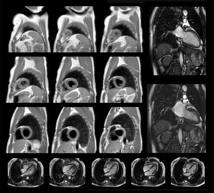 La RMN cardiaca sta diventando sempre più importante, ma a chi è veramente utile?