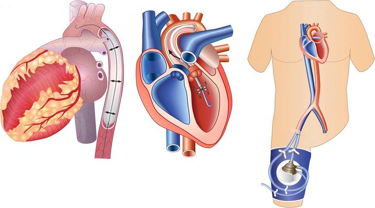 simposio congiunto anmco – aha acute cardiac care