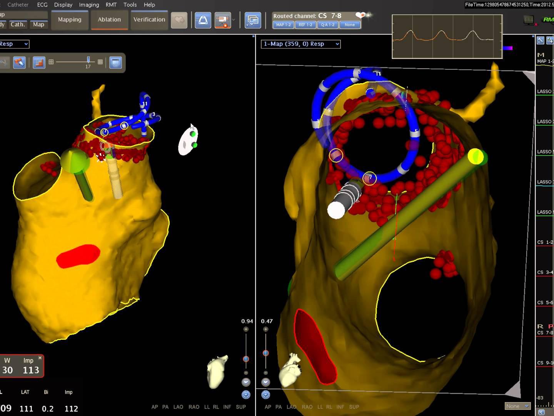 Main Session appropriatezza dell'imaging cardiovascolare