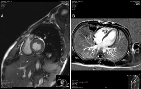 Imaging integrato nella cardiopatia ischemica: realtà attuale e prospettive future