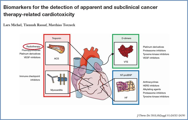 Cardioncologia nel pianeta Donna