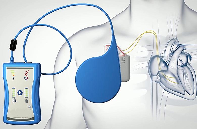 Scompenso cardiaco, vecchie e nuove frontiere: la modulazione della contrattilità cardiaca