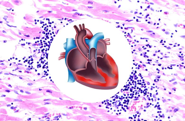 Il documento intersocietario ANMCO – SIC, un percorso condiviso per i pazienti con miocardite